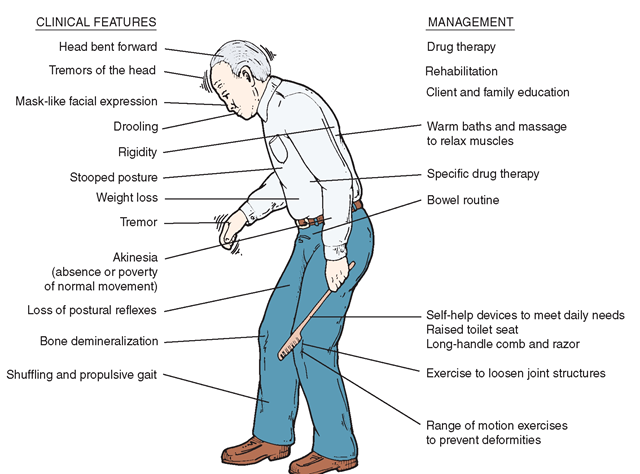 In Parkinson's anxiety medications can lead to increased rigidity and affect one's ability to stand and walk